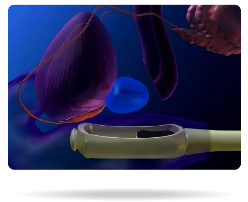Non-invasive HIFU Focal Therapy for Prostate Cancer| Vision